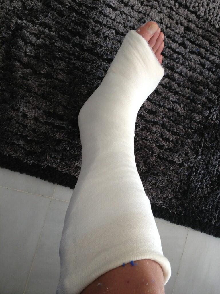 Así tiene Perquis la pierna derecha hoy.