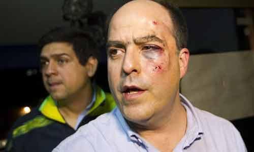 venezuela-pelea-asamblea