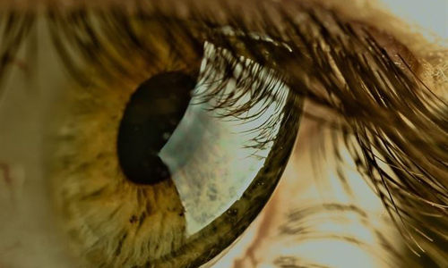 Ojos córneas