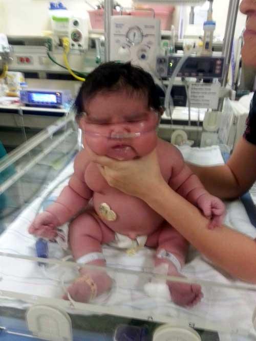 bebe-gordo
